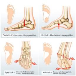 Einlagen zur Korrektur von Fußfehlstellungen